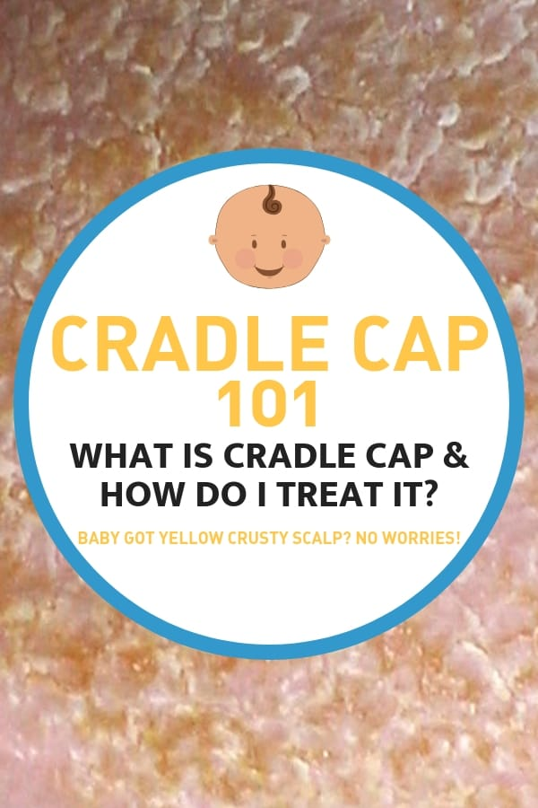 cradle cap treatment 101 what is cradle cap and how to treat it